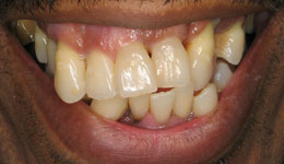 complete-tooth-loss 1